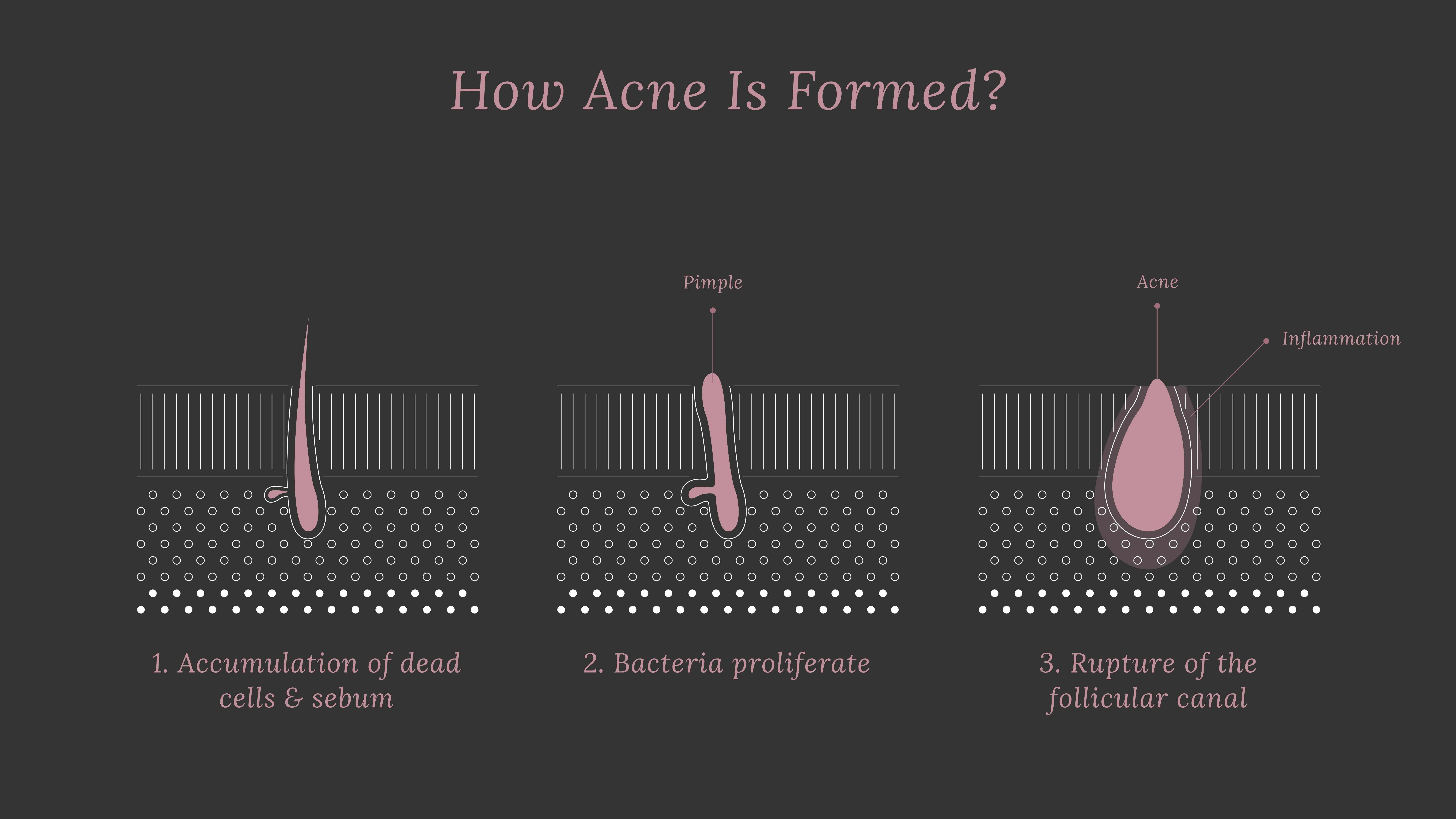 How Does Pore Size Change Over Time? Can We Shrink Large Pores? 3