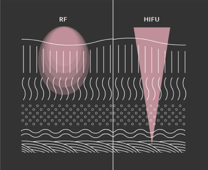 RF vs HIFU: What's the Difference?