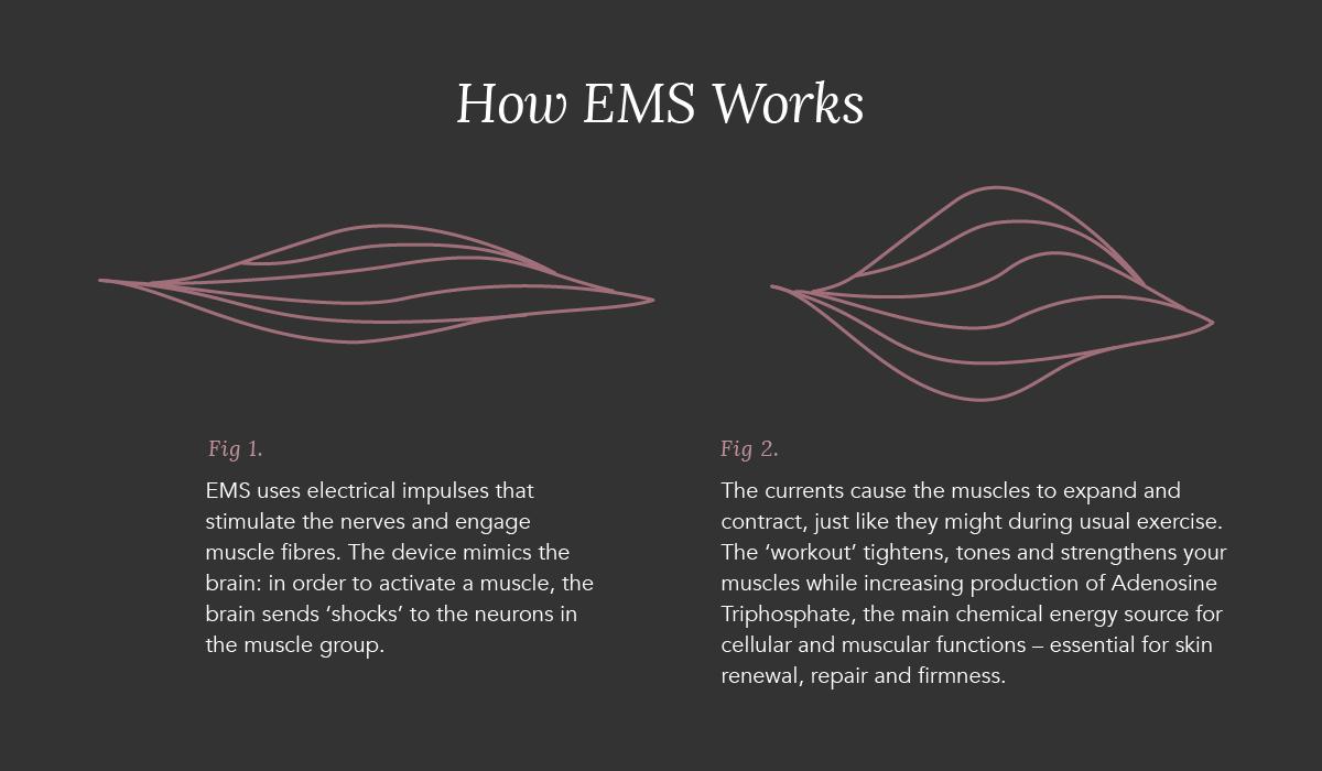 EMS_A