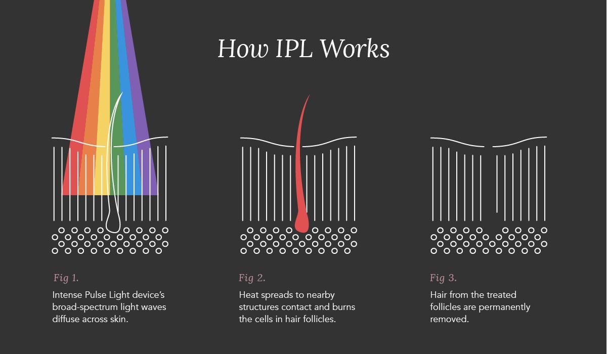 IPL_A