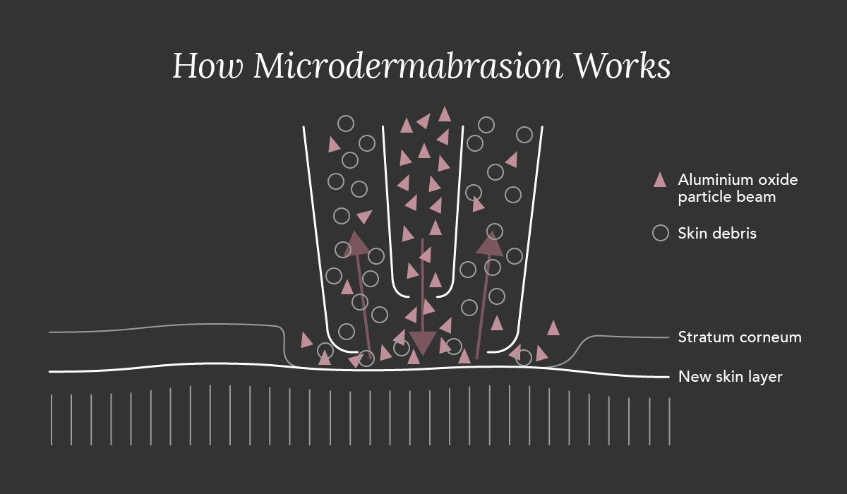 Microdermabrasion_A