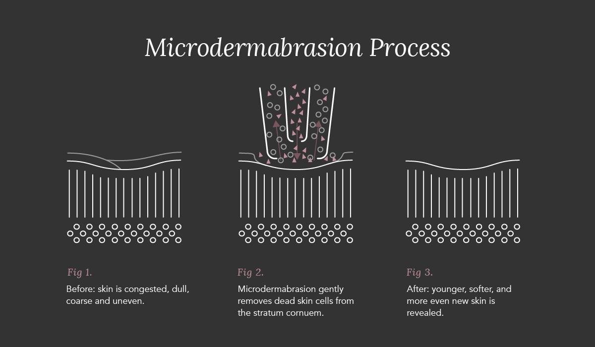 Microdermabrasion_B